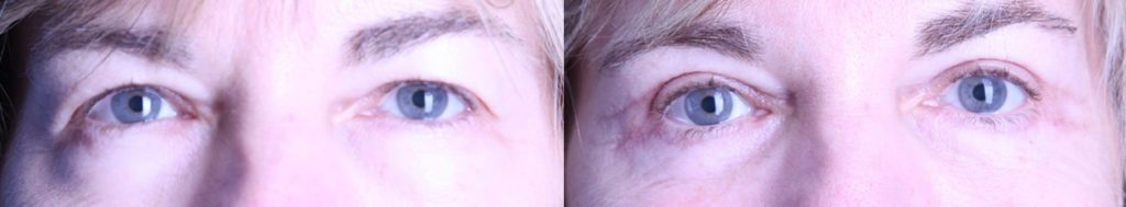 eyelid lift before & after