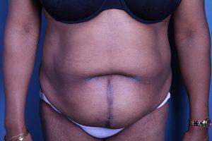 Tummy Tuck (Abdominoplasty) Patient