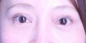 Blepharoplasty Patient
