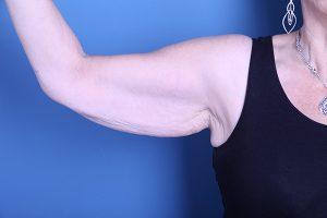 Arm Lift (Brachioplasty) Patient