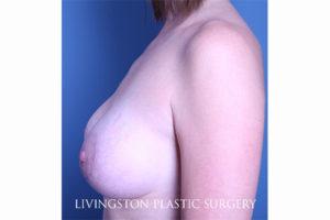 Breast Augmentation + Lift Patient