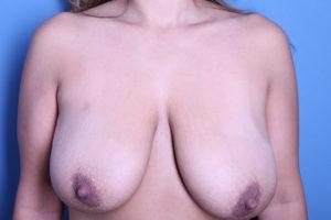 Breast Lift (Mastopexy) Patient