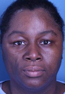 Facial Reconstruction Patient