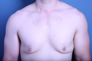 Male Breast Reduction (Gynecomastia) Patient