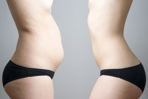 before and after liposuction side profile